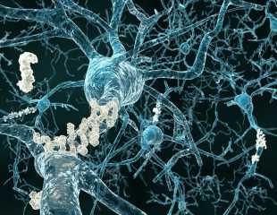Science Says the Fatty Acids in Omega-3 Supplements Can Stabilize Alzheimers Patients Memories